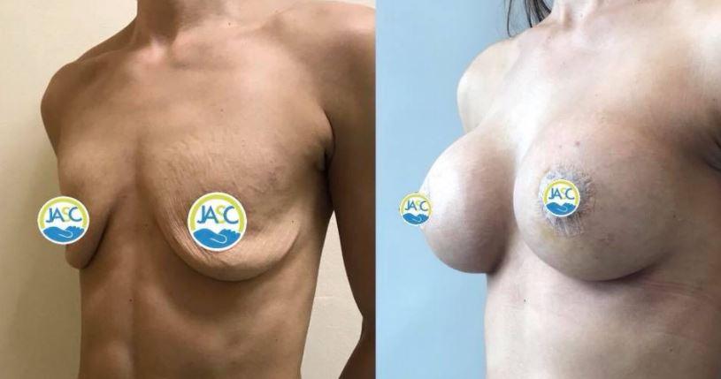 Breastaug lift