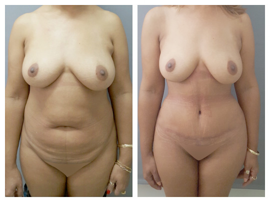 Abdominoplastia 4