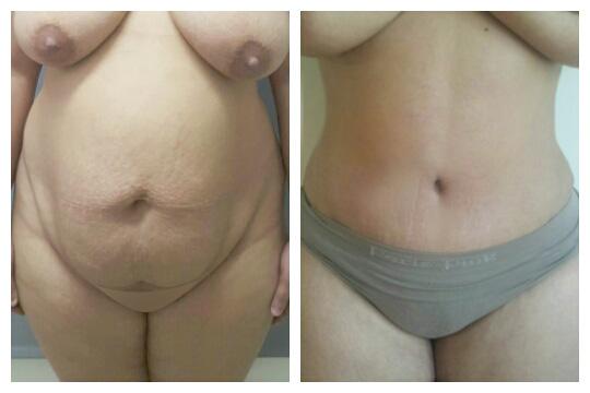 Abdominoplastia 7