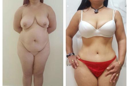 Abdominoplastia 6b