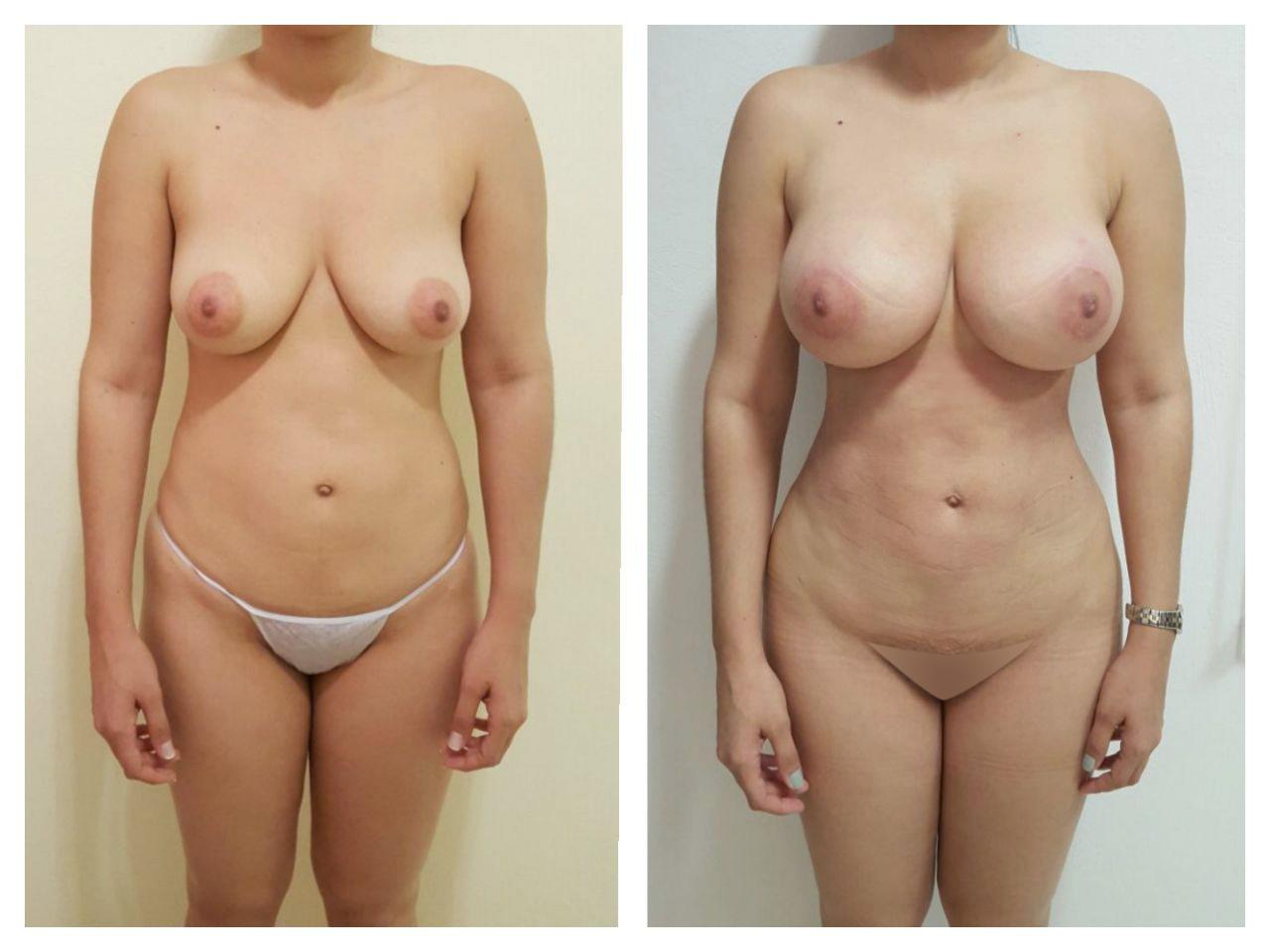 Liposuccion y aumento de senos