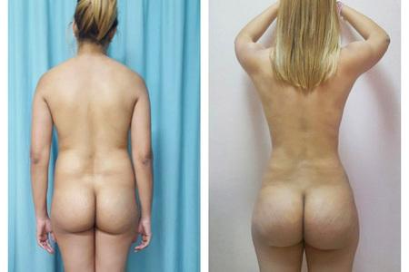 Liposuction (Liposculpture)
