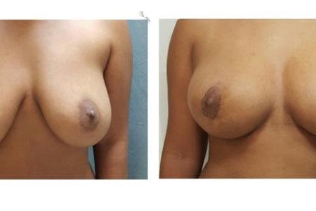 Breast Lift / Mastopexy