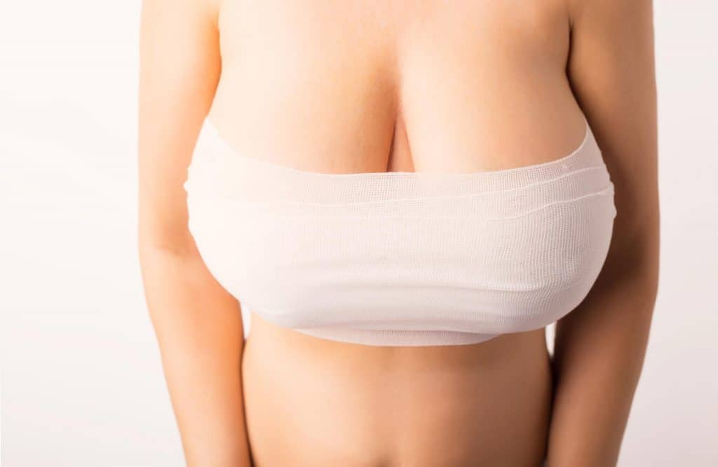 Candidatos para una mamoplastia reductora 1024x666