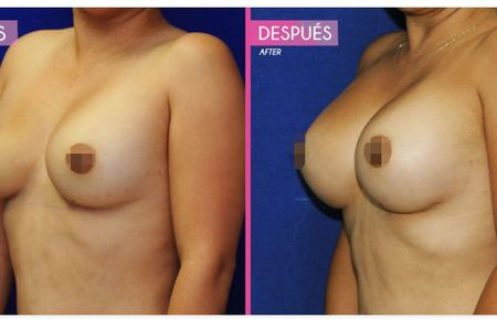Breastaugmentation4