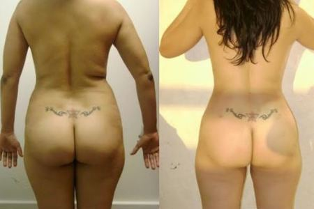 Buttock augmentation (Brazilian butt lift) [Butt lift and augmentation  (with fat or Implant)]