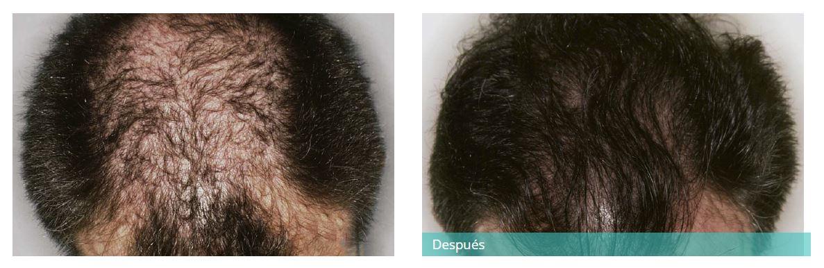 Hair transplant2