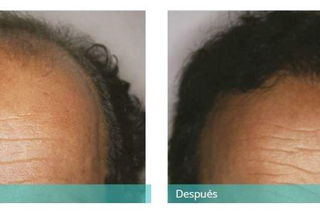 Hair transplant3