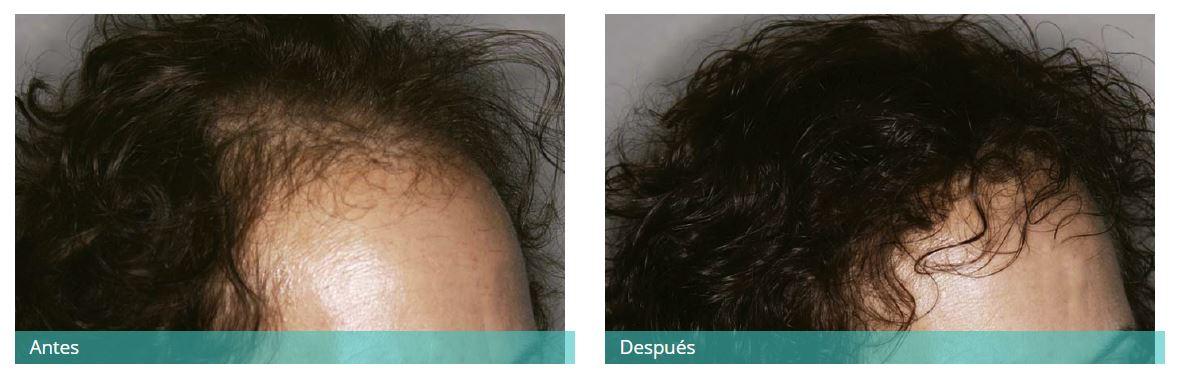 Hair transplant7