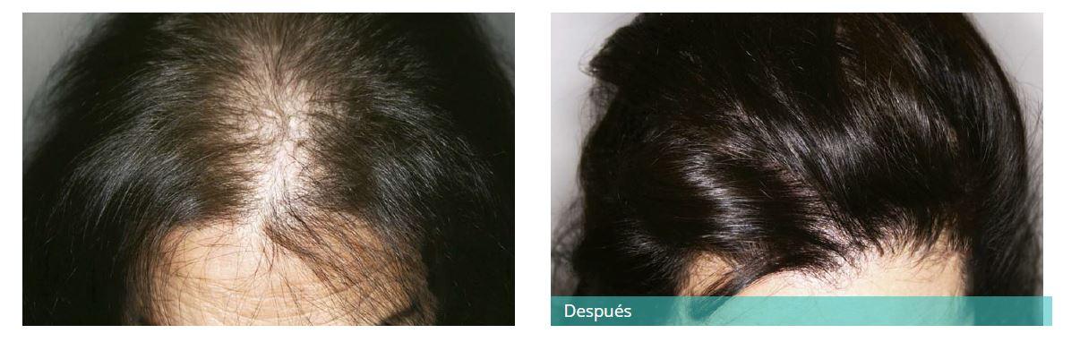 Hair transplant9