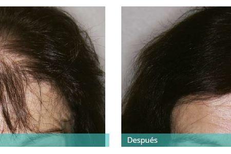 Hair transplant8