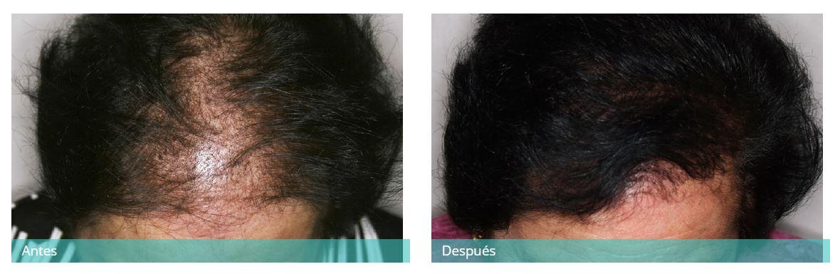Hair transplant6