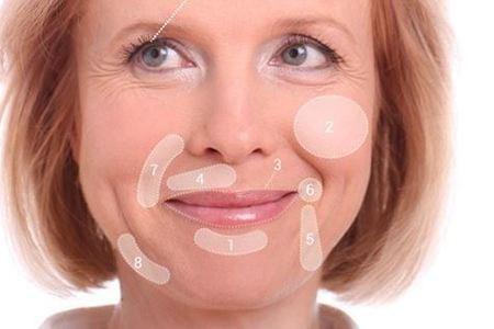 Facial fillers