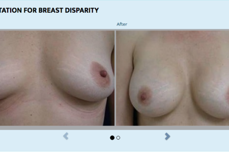 Breast Augmentation Saline (Silicon)