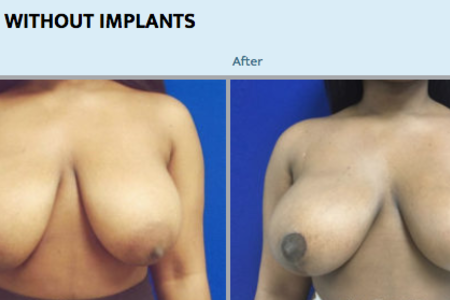 BREAST LIFT WITH MINIMAL SCARRING