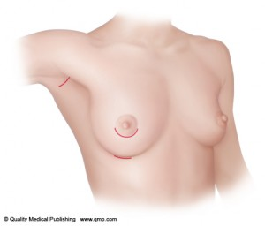 Breast implant incision1 300x256