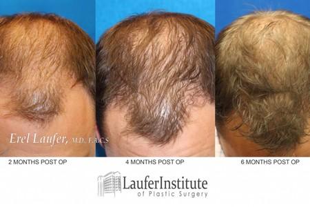 Hair transplant3 months 1024x590