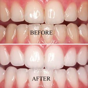 Teeth whitening 300x300