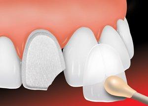 Ada dental veneer 1 new