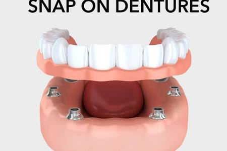 Snap on dentures