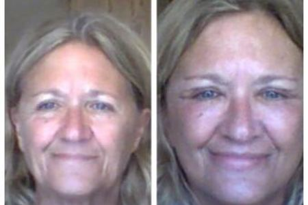 Face Lift/Neck Lift