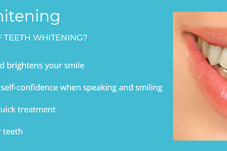 Teeth Whitening – Take home custom trays or in-office treatment