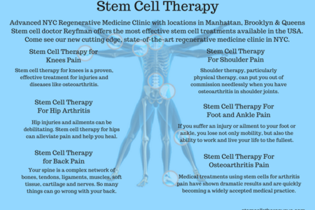 13 stem cell therapy
