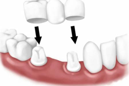 Dental bridge implants 1
