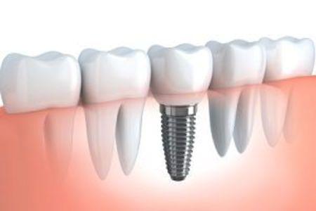 Supplemental dental insurance implants o
