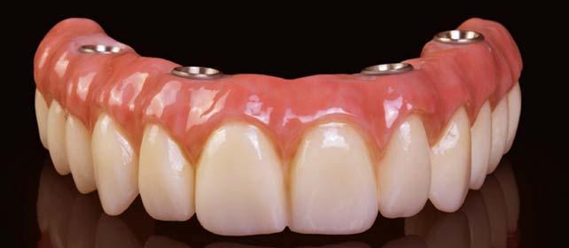 All on 4 dental implants tijuana