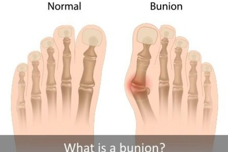 Bunion Treatments