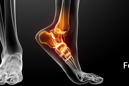 Foot & Ankle Arthroscopic Surgery