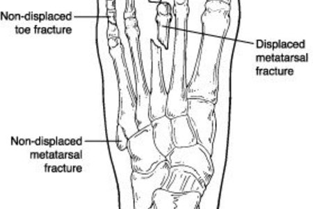 Toe and Metatarsal Fractures (Broken Toes)