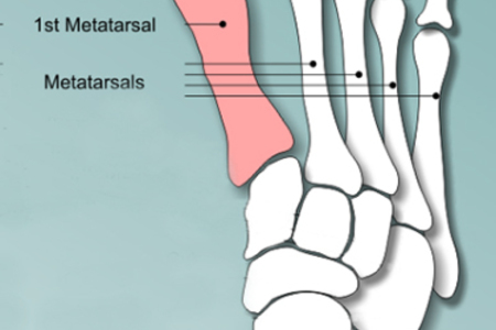 3-D Bunion Correction and Minimally Invasive Bunion Surgery