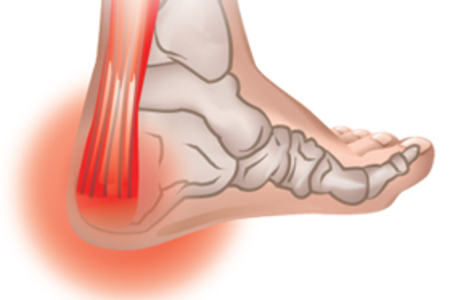 Achilles Pain and Injuries