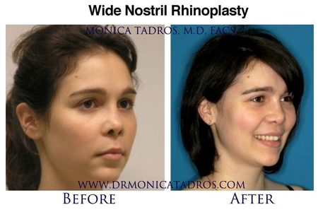 Wide Nostril Reduction And Big Nostril Nose Job In NYC & NJ