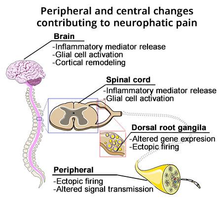 Neuropathic pain 1