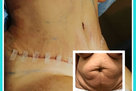 Dr. Javier B. Angles-Tummy Tuck