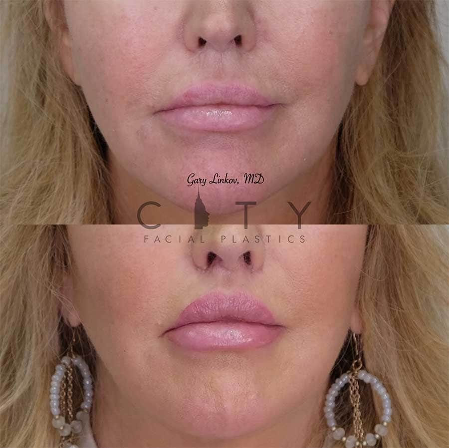Lip lift revision 16 frontal mouth closed 1