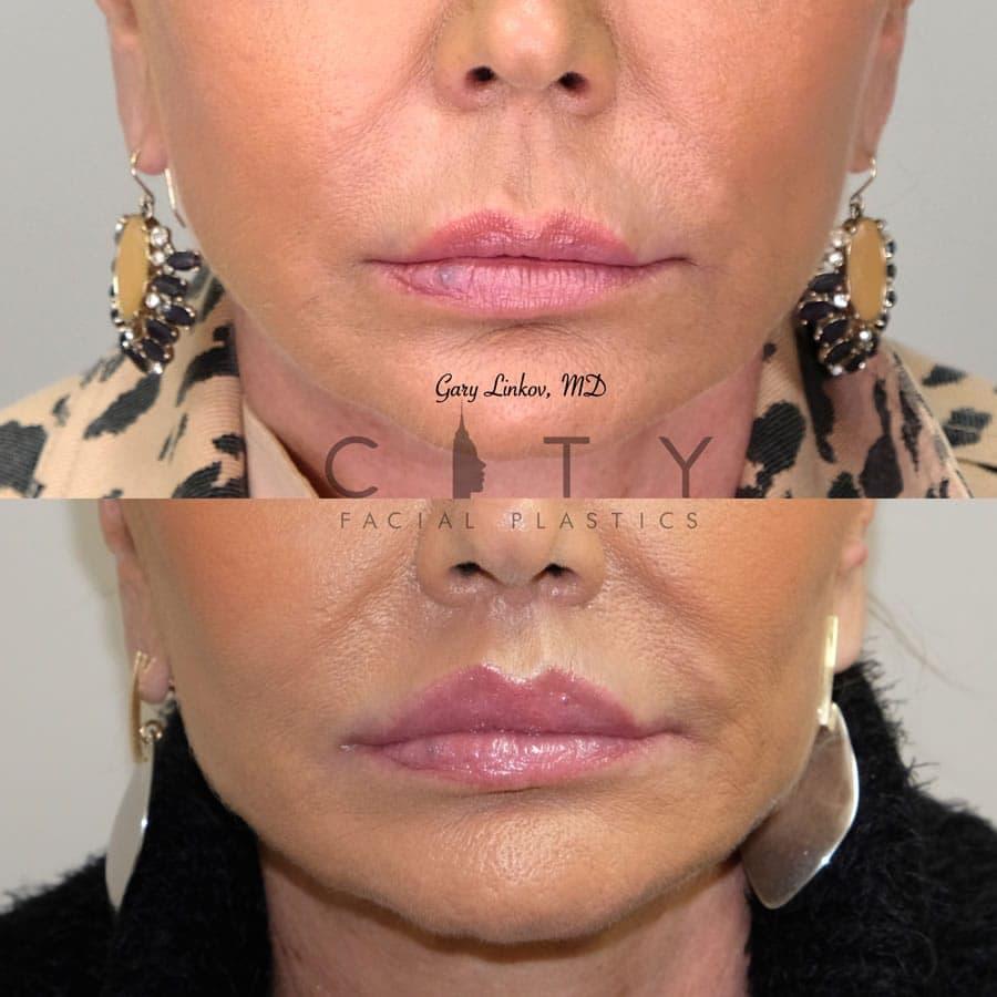 Elelyft lip lift 21 frontal 1