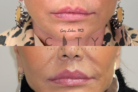 Elelyft - New York Facial Plastic Surgeon Dr. Gary Linkov